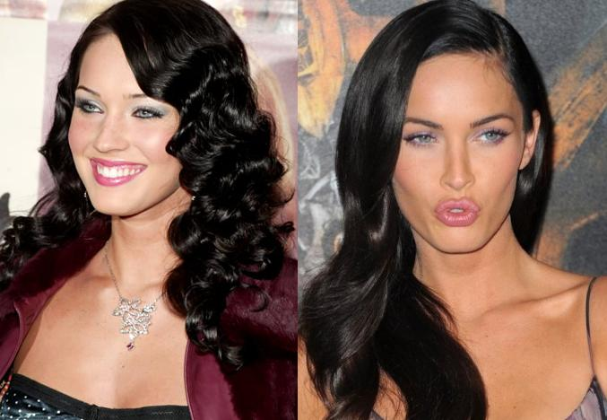 Candice Swanepoel Before And After Plastic Surgery Looked before they became