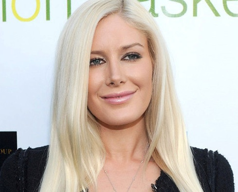 pictures of heidi montag scars. heidi montag scars life and style. heidi montag before and after